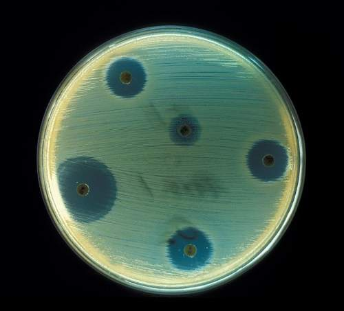 Superbugs Antibiotics Photo By Don Stalons